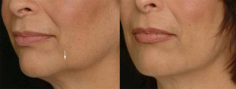 Prejowl sulcus perfect face facial laser aesthetics clinic pre jowls countouring ccuart Image collections
