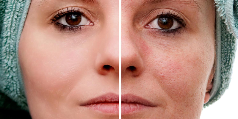 Lugares na cara depois de pontos de vitamina B
